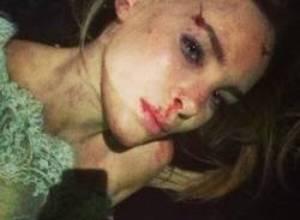 Belinda se disculpa por simular accidente