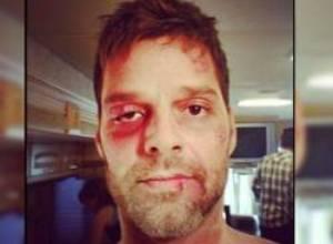 La impresionante foto de Ricky Martin golpeado