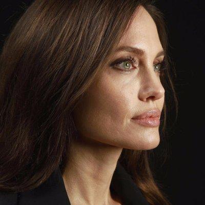 Esta mujer se operó 50 veces para parecerse a Angelina Jolie y terminó como un personaje de Tim Burton